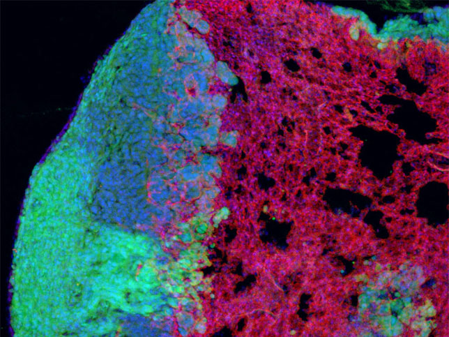 Tumors require large amounts of oxygen and nutrients to fuel their rapid growth. How do they acquire these resources? Here, a lung tumor (green) extends to the right, infiltrating healthy lung tissue, rich in nutrient-carrying blood vessels (red). The Jacks Lab is interested in understanding the nature of the communication between cancer cells and blood vessels.